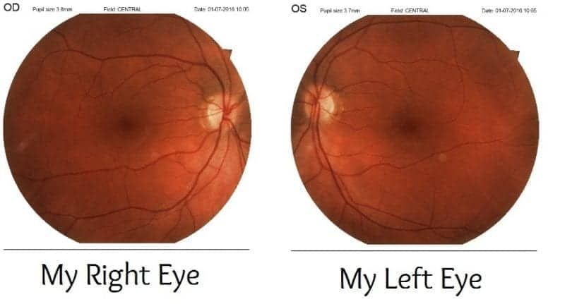 Specavers Retinal Images